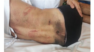 Photos show bruises on protester's body as result of beating in Jal el-Dib